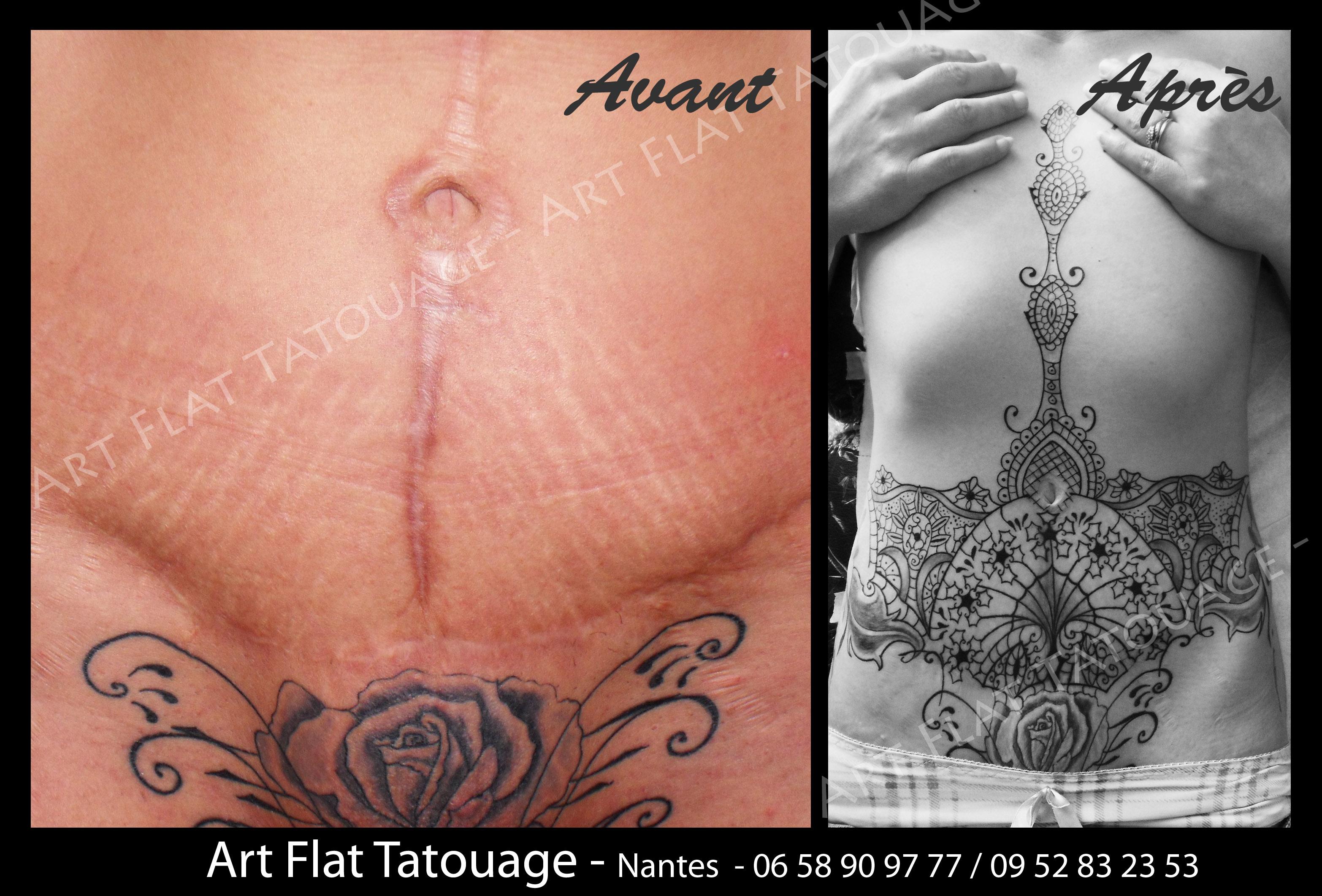 Tatouage Cicatrice Ventre Modeles Et Exemples